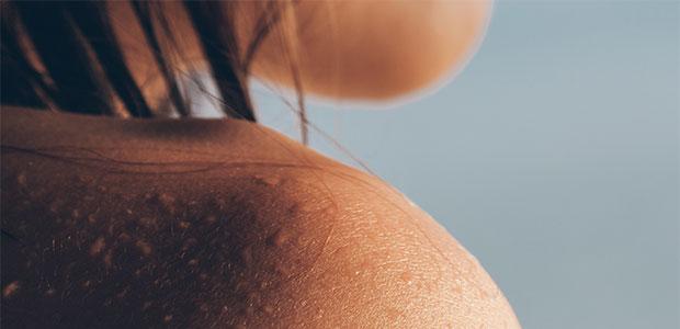 3 Simple Steps to Ease Eczema